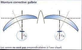 glossaire optique - Schema du galbe optique
